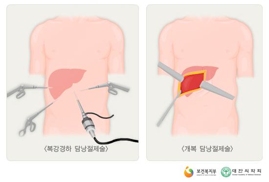 단일통로복강경담낭절제술