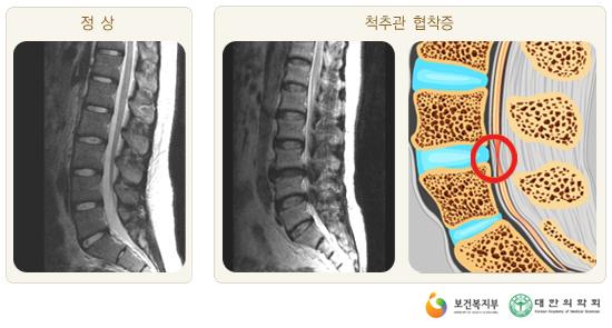척추관협착증