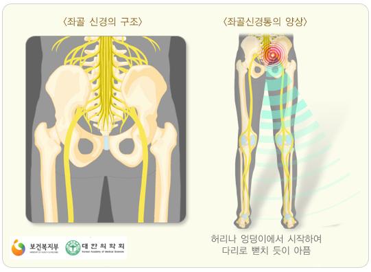 좌골신경통